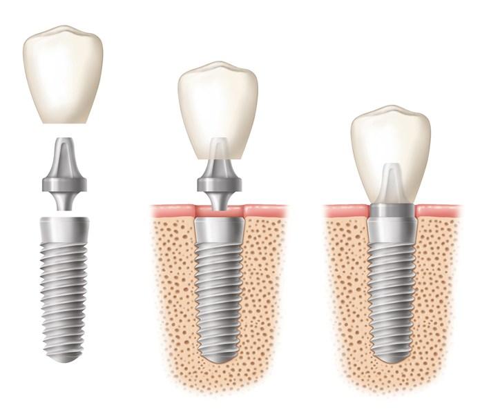 Dentalna implantologija, Ordinacija dent. medicine Tanja Poropat, Labin, Istra