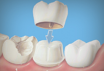 Bezmetalne keramičke krunice, Ordinacija dent. medicine Tanja Poropat, Labin, Istra