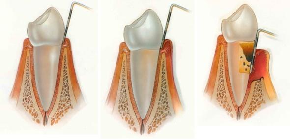 Parodontologija, Ordinacija dentalne medicine Tanja Poropat, Labin, Istra