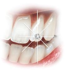 Udlage i zubni nakit, Ordinacija dent. medicine Tanja Poropat, Labin, Istra