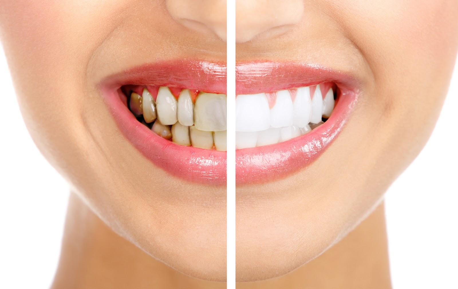 Izbjeljivanje zuba - Whitening i Bleaching proizvodi, Tanja Poropat, Labin, Istra